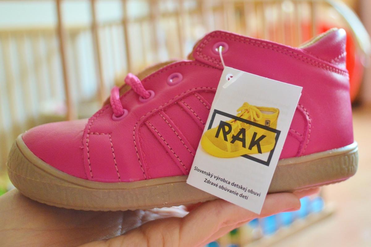 Aké topánočky na vysoký priehlavok?